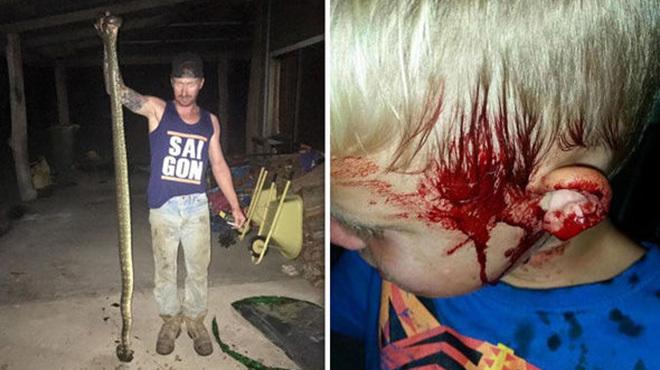В Австралии огромный питон напал на 6-летнего мальчика