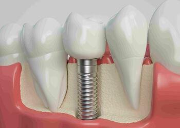 250_350_crop__psz9yk_implantystomatologicznes
